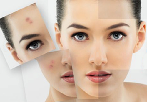 acne_behandeling